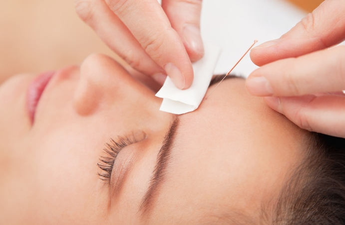 Akupunktur gegen Kopfschmerzen
