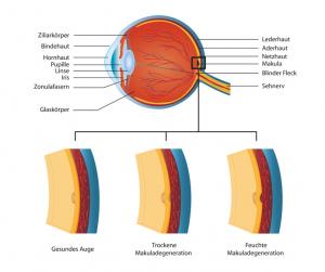Feuchte und trockene Makuladegeneration (AMD) (Fotolia)