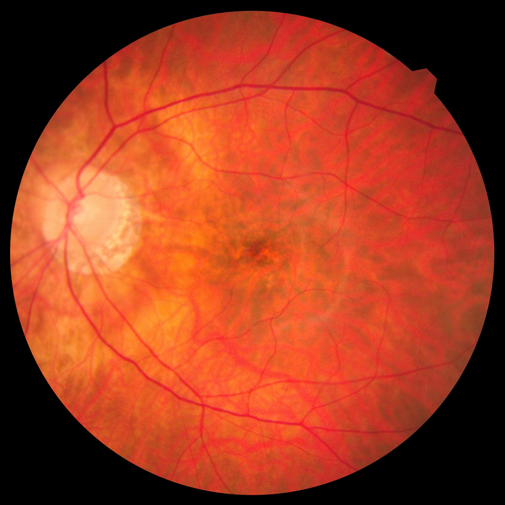 Ophthalmic image that details the retina and optic nerve in a healthy human eye