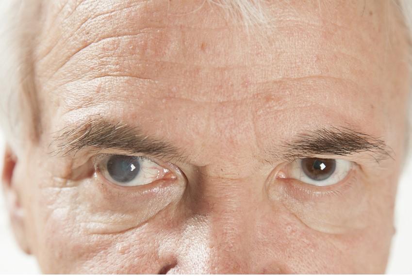 Cholesterinsenker können das Risiko für grauen Star erhöhen (Fotolia)
