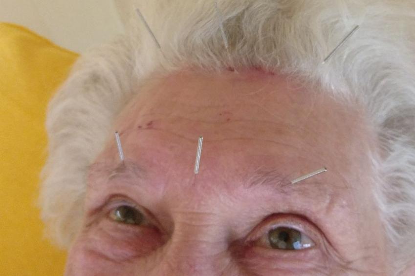 Neue Systeme in der Augenakupunktur - Punkte auf Stirnpartie