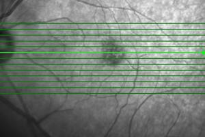 Diagnose Makuladegeneration: Optische Kohärenztomografie (OCT) ist ein Untersuchungsverfahren (Shutterstock)