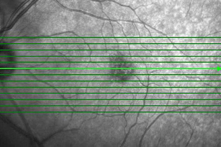 Diagnose Makuladegeneration – Sind die Sehzellen wirklich tot?