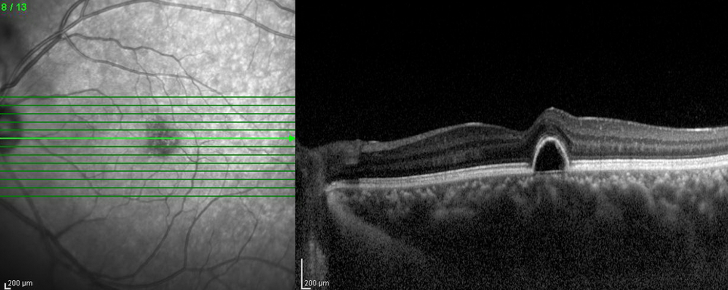 OCT-Untersuchung zur Diagnose Makuladegeneration AMD komplett