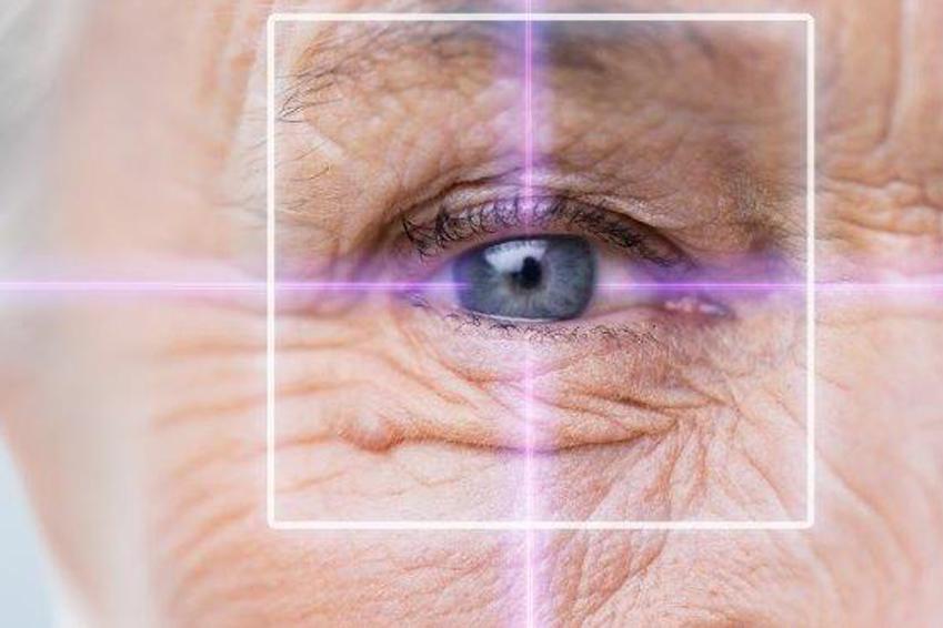 Augenakupunktur als Therapie bei Makuladegeneration