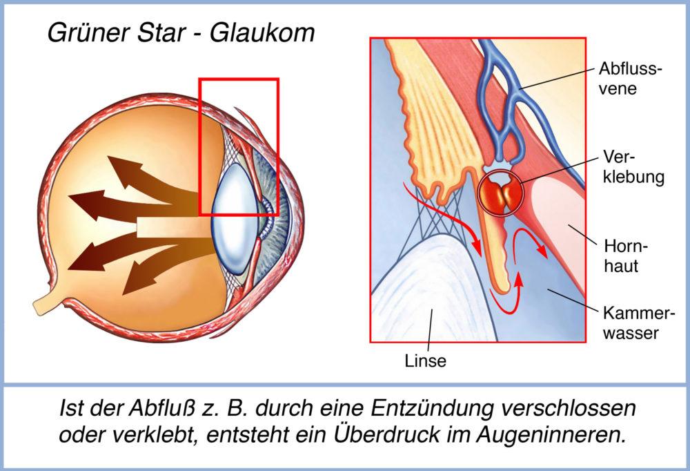 Glaukom (Grüner Star) verursacht ein Ansteigen des Augeninnendruck