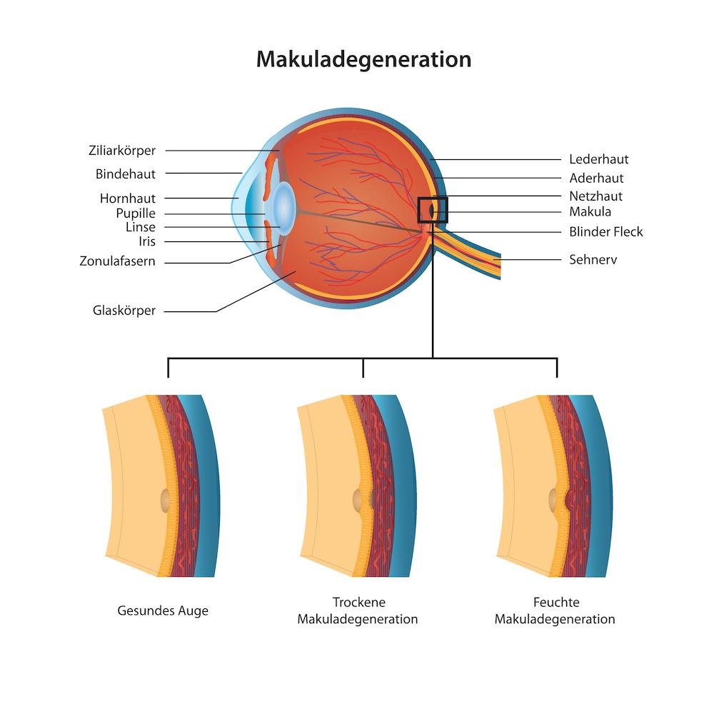 Die trockene und feuchte Makuladegeneration